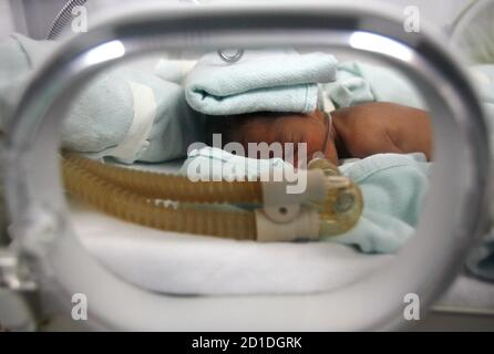 A premature baby receives breathing assistance as its lungs are still underdeveloped while lying in an incubator at the Neonatal Intensive Care unit at the Ramon Gonzalez Coro maternity hospital in Havana January 24, 2008. Cuba has an infant mortality rate on a par with rich industrialized nations, of 5.3 deaths per 1,000 live births, which it boasts is lower than in the United States. Maternal mortality was down from 49.4 to 31.1 deaths per 100,000 live births.  Picture taken January 24, 2008  REUTERS/Claudia Daut (CUBA) - Stock Photo