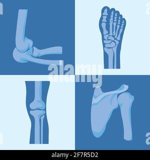 four rheumatology joints