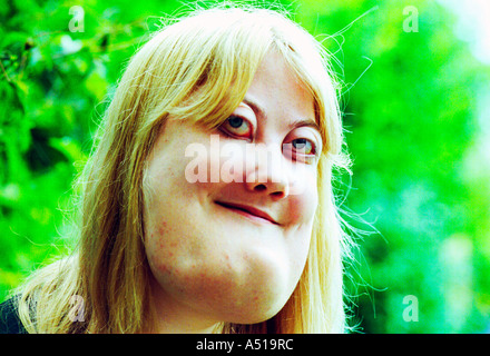 A young woman with cherubism.  The rare genetic condition  is a hereditary  form of  polyostotic fibrous dysplasia. - Stock Photo