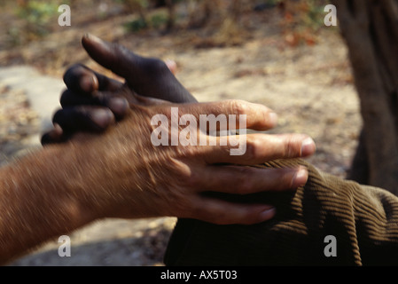 Mbala, Zambia. Black and white hands; shaking hands. - Stock Photo