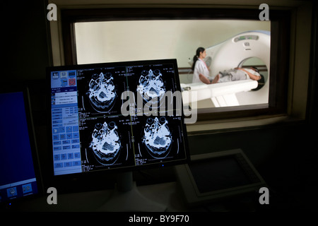 MRI results on a computer - Stock Photo