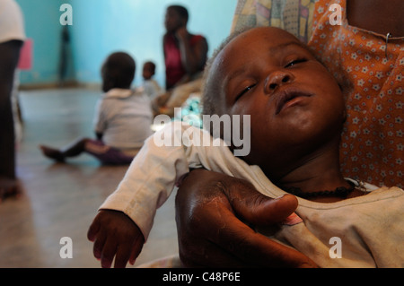 A malnourished toddler at a medical center in Malawi Africa - Stock Photo