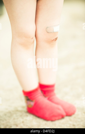 Girl 3 years old with red socks and scrape wound on her legs. - Stock Photo