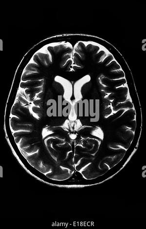 Horizontal section of a human brain - MRI scan - Stock Photo
