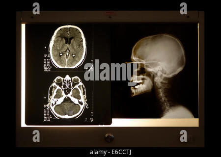 X-ray image of skull and cranial computed tomography scan viewed on light box - Stock Photo