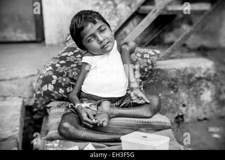 A small homeless girl, severely disabled, begging for money in rural India. - Stock Photo