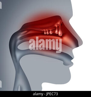Nasal polyps medical concept as noncancerous swelling and growth as a human sinuses congestion symptom symbol.0 - Stock Photo