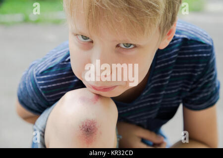 Closeup of injured young kid's knee after he fell down on pavement. Boy's face and wounded scraped leg on summer - Stock Photo