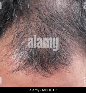 Point of focus lose one's hair glabrous baldy loss hairline men. - Stock Photo