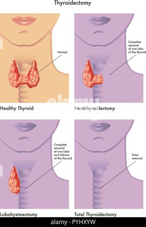 Medical illustration of the various types of thyroidectomy - Stock Photo