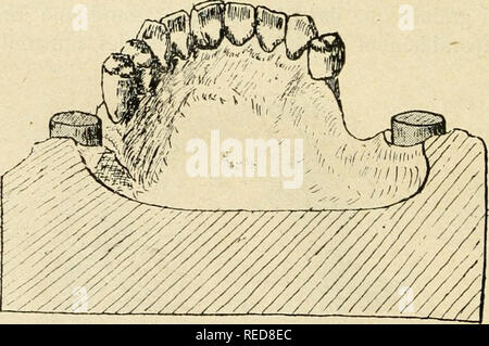 . Compte rendu. Science; Science -- Congresses. ¥G. 14. jjilacé li'ès bas sur la uKupieuse i)ien en dessous du collet des dents etjui tresl daucune gvne f/i;/. l'i, 10, 17). Bien entendu si les couronnes-crochets sont au niveau des molaires, il. Fie;. 15. est indispensable de placer des taquets de plalruf sur la face triluranlc d'une prémolaire de chaque C()té pour éviter renfoncement de ce fil dans ia muqueuse. iS'ous vous présentons (juelques appareils ou bridges: ils vous montre- î'onl, )nieux (juc (oute description, l'emploi de la couronne-crochet (firj.7, 8,9, KK II, 12, 13, li - Stock Photo