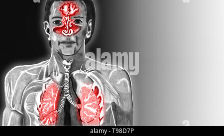 X-ray view of the respiratory tract in a human. The upper airways are inflamed and therefore red. Pencil drawn illustration. - Stock Photo