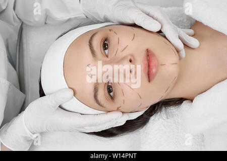 View from above of young girl lying on coach while visiting surgeon in clinic. Attractive female client with markup on face during lifting of skin. Concept of plastic and medical procedures. - Stock Photo