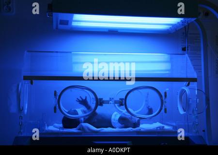 Premature baby with jaundice having phototherapy - Stock Photo