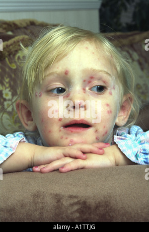 Young female child suffering with Chickenpox - Stock Photo