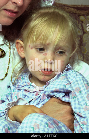 Young girl child suffering with Chickenpox - Stock Photo