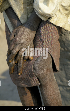 ANGOLA CIVIL WAR AUG 1993 CLOSE UP ON HANDS AND LEGS OF AN ELDERLY MAN - Stock Photo