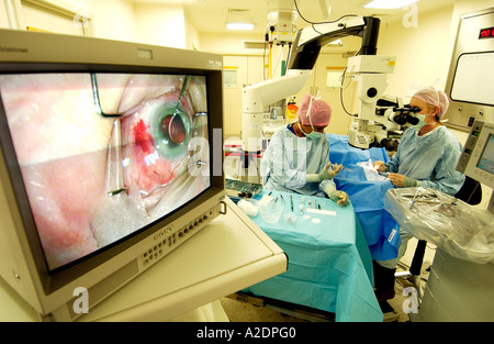 Cataract operation seen in close up on operating theatre screen with woman doctor and nurse behind. - Stock Photo
