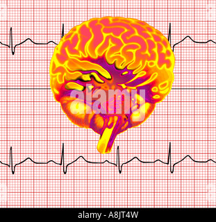 computer generated model of a human brain composited on a EKG printout - Stock Photo