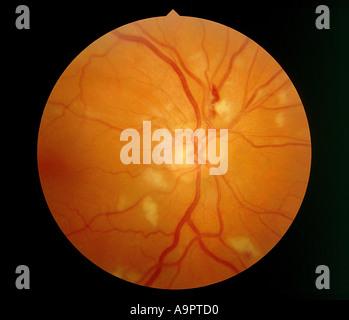 CMV retinitis - Stock Photo