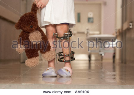 Low section of girl wearing leg brace - Stock Photo