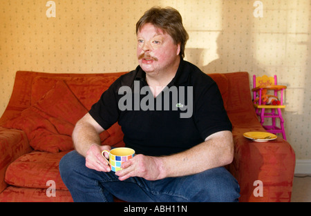Simon Weston suffered terrible burns when RFA Sir Galahad was bombed during Falklands war 1982 while serving with - Stock Photo