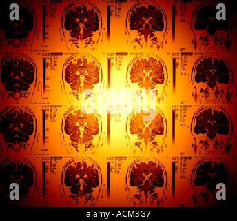 colored x-rays of cerebral cortex cerebellum human brain MRI - Stock Photo