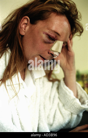 Woman who has been the victim of domestic abuse with multiple bruising and a broken nose. - Stock Photo
