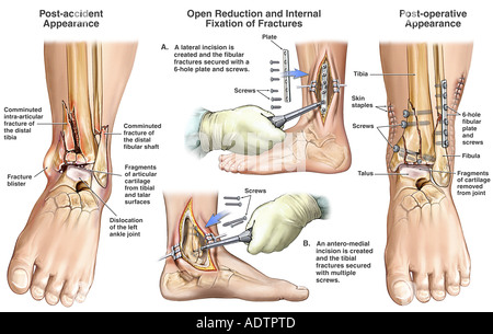 Left Ankle Fracture/Dislocation with Surgical Fixation - Stock Photo
