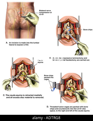 L5-S1 Laminectomy, Partial Facetectomy and Spinal Fusion Procedure - Stock Photo