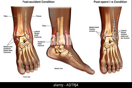 Left Ankle Trimalleolar Ankle Fractures with Subsequent Surgical Fixation - Stock Photo