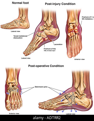 Left Foot Crush Injuries with Initial Surgical Fixation - Stock Photo