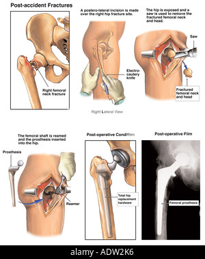 Post-accident Hip Fracture with Subsequent Total Hip Replacement - Stock Photo