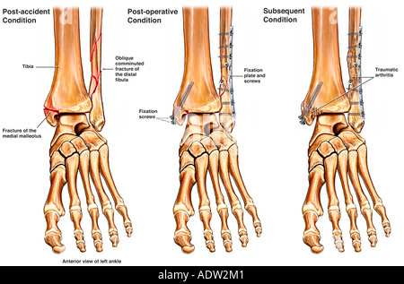 Left Ankle Fracture with Surgical Fixation and Subsequent Arthritis - Stock Photo