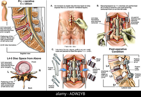 Back Surgery - L4-5 and L5-S1 Laminectomy, Discectomy and Spinal Fusion - Stock Photo