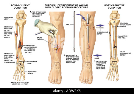 Lower Leg Fractures (Broken Tibia and Fibula) with Surgical Fixation ...