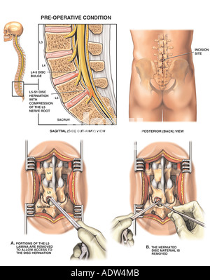 L4-5 and L5-S1 Disc Injuries with Laminectomy and Discectomy Procedure - Stock Photo