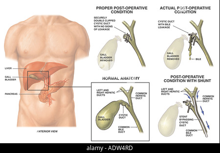 cholecystectomy gallbladder surgery with injury to the common bile, Human Body