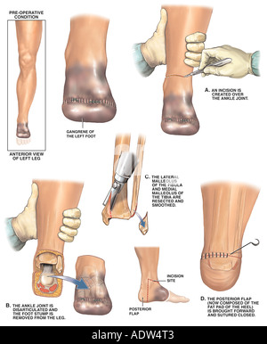 Post operative Gangrene of the Left Foot with Amputation Surgery - Stock Photo