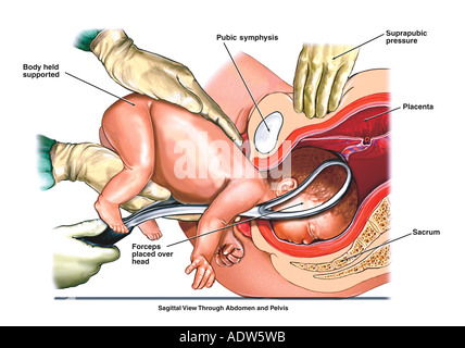 Birth injury stock photo 7712573 alamy birth injury breech presentation with forceps delivery stock photo ccuart Choice Image