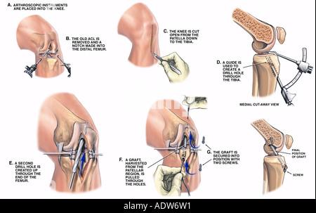 Anterior cruciate ligament reconstruction Stock Photo: 9150707 - Alamy