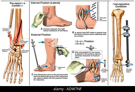 Right Ankle Fractures with Subsequent Surgical Fixation and Placement of an External Fixator - Stock Photo