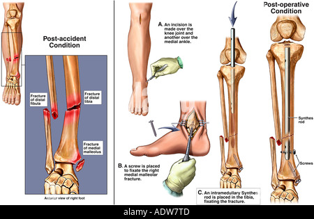 Right Ankle Fractures with Surgical Fixation - Stock Photo