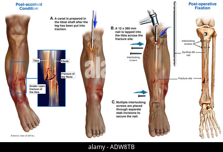 Lower leg fractures broken tibia and fibula with surgical fixation anatomy of the lower leg and foot multiple left leg fractures with surgical fixation stock photo ccuart