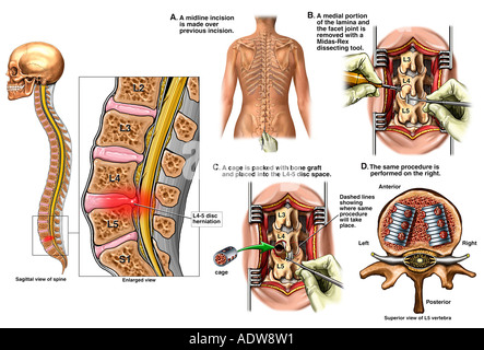 Lower Back Surgery L4 5 Disc Herniation with Laminectomy and Spinal Fusion - Stock Photo