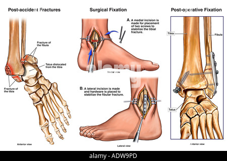 Left Bimalleolar Ankle Fractures with Subsequent Surgical Fixation - Stock Photo