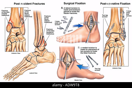 Left Tri malleolar Ankle Fractures with Surgical Placement of Plates and Screws - Stock Photo