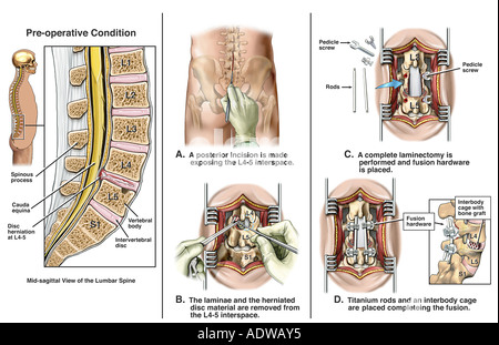 L4-5 Disc Herniation with Discectomy and Fusion Procedures - Stock Photo