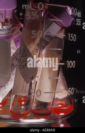 Blood in test tubes - Stock Photo