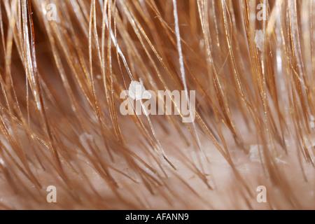 Close up of human hair and dandruff - Stock Photo